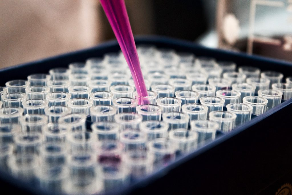 Pipette amidst test tubes in a lab. Photo by Louis Reed on Unsplash.