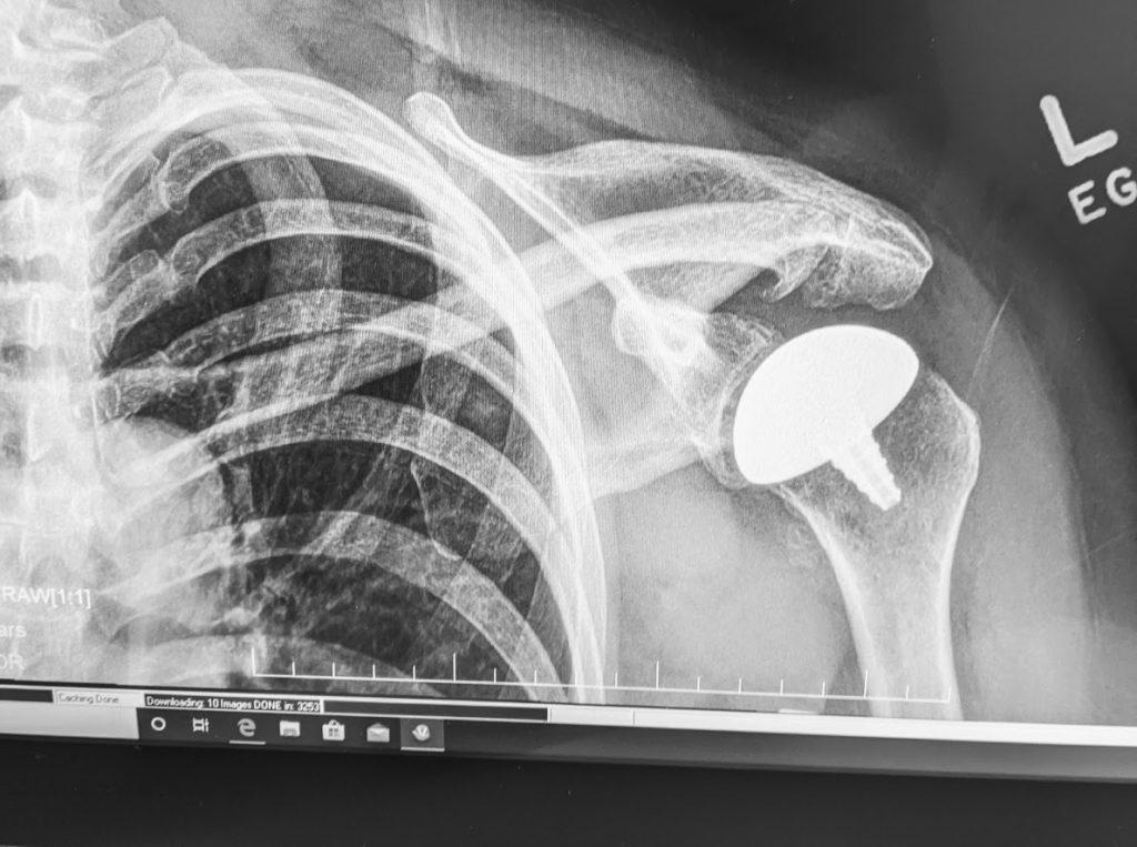 A medical implant in a patient's shoulder, image credit: Startups San Antonio.