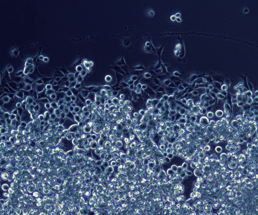 The featured image is of placental stem cells. Image courtesy Perytor Therapeutics.