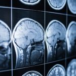 Renovo Concepts Raises Series A Funding for Traumatic Brain Injury Device